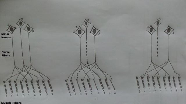 Gambar 1. Inervasi dan denervasi pada serat otot. Disalin dari Fig. 2.2 buku Mitsumoto (2009)